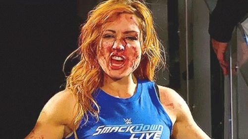 Becky Lynch busted open on Raw